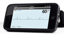 Alivecor Heart Monitor for iPhone